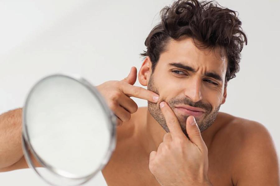 Il giovane brufoloso… ma l'acne colpisce anche le signore!