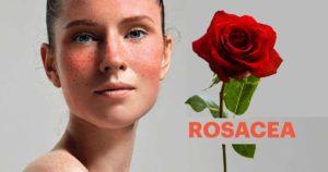 Rosacea-farmacia-cannone-vomero