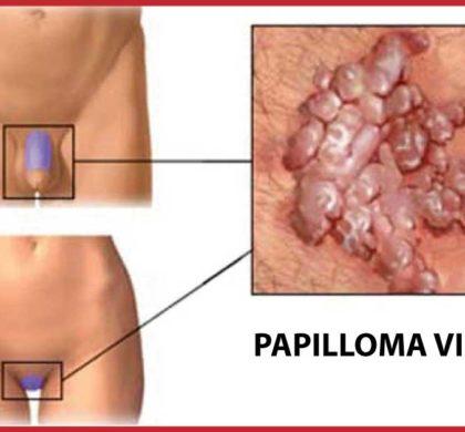 Parliamo di Papilloma Virus