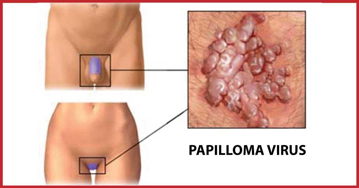 sintomi del papilloma