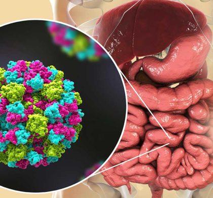 Gastroenterite virale 2020 in bambini e adulti
