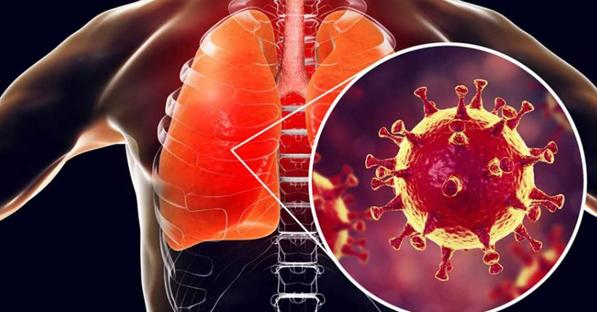 Cos'è la polmonite e come possiamo proteggerci